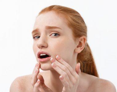 بهترین راه درمان پوست چرب