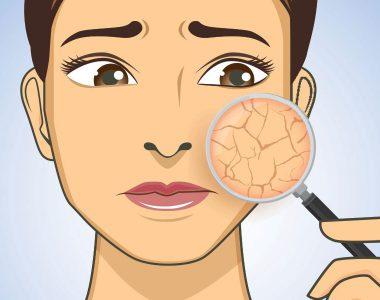 راه های درمان کم آبی پوست