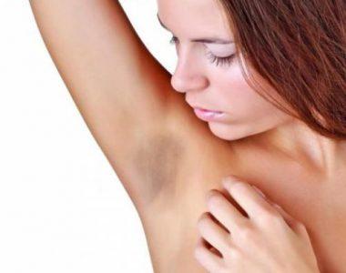 پنج روش برای خلاص شدن از تیرگی زیر بغل