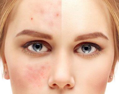 درمان لک های پوستی