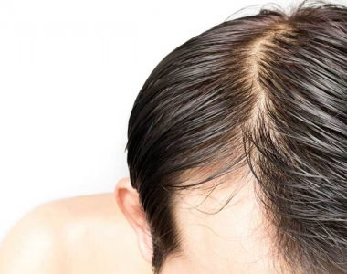 کنترل چربی مو