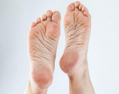 ترک های پوستی و روش های درمان آن